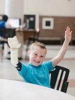 پروتز انگشت مصنوعی برای دست و پا