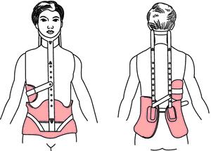 درمان اسکولیوز با بریس میلواکی
