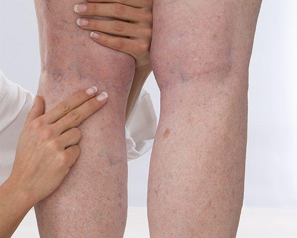 گرفتگی عروق در بدن یا Vein Thrombosis